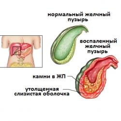 Воспаление желчного пузыря симптомы и лечение в домашних условиях