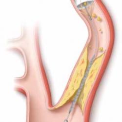 Кровь из вены на холестерин норма у женщин таблица