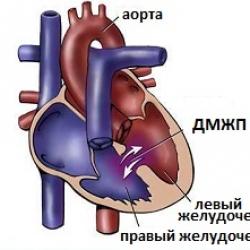 Дефект межжелудочковой перегородки (ДМЖП) — Симптом Инфо