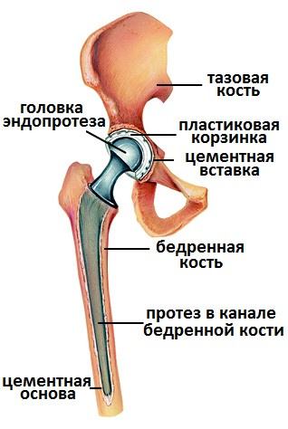 Наращивание тазобедренного сустава разработать ногу после перелома коленного сустава