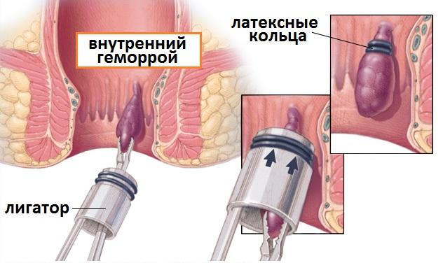 nizhniy-tagil-natalya-lebedeva-seks
