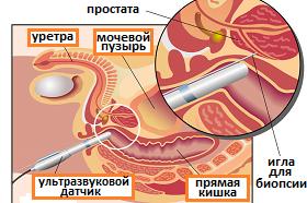 биопсия простаты под УЗ-наведением