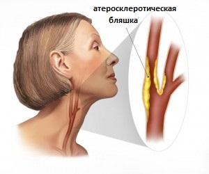 бляшка в сонной артерии
