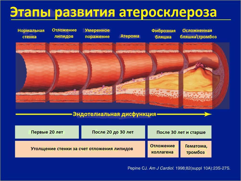 Осложнения после стентирования коронарных артерий