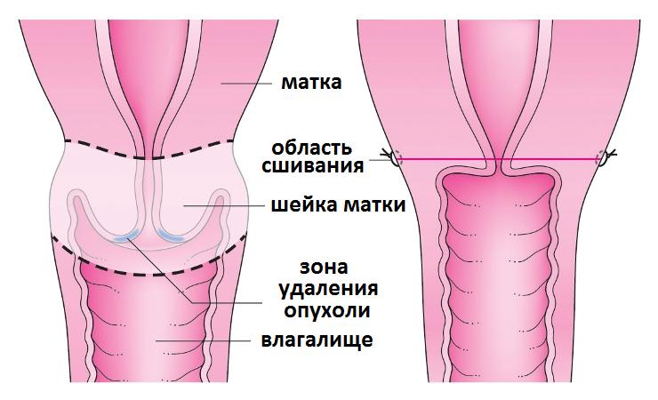 trahnut-transa-v-ochko
