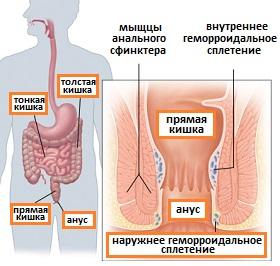 sposob-lecheniya-analnoy-treshini