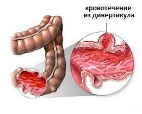 Беременность геморой что делать