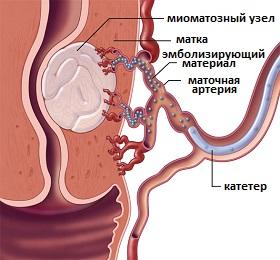 Удаление миоматозных узлов секс