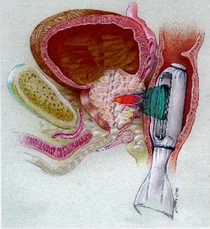 ультразвуковая аблация рака предстательной железы