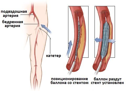 Перемежающаяся хромота - Симптом Инфо