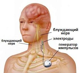 лечение эпилепсии за рубежом