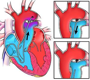 эндоваскулярное закрытие ОАП
