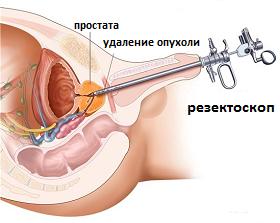 трансуретральная резекция (ТУР) при раке