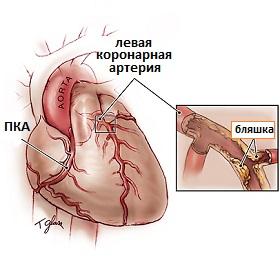 Новосибирск лечение атеросклероза нижних конечностей в