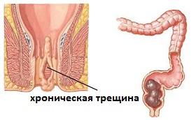 analniy-slizistoy-razriva