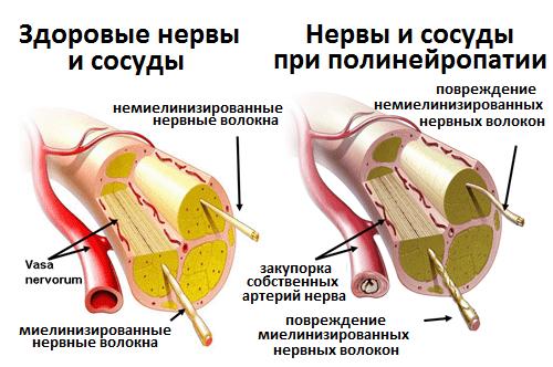 Диабетическая нейропатия — Симптом Инфо