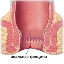 mazi-dlya-analnoy-treshini